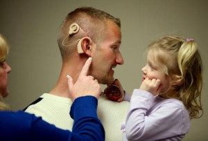 Restored Hearing - Cochlear Implant
